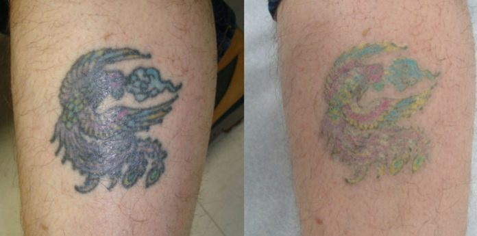 6 best tattoo removal creams in 2017 reviews