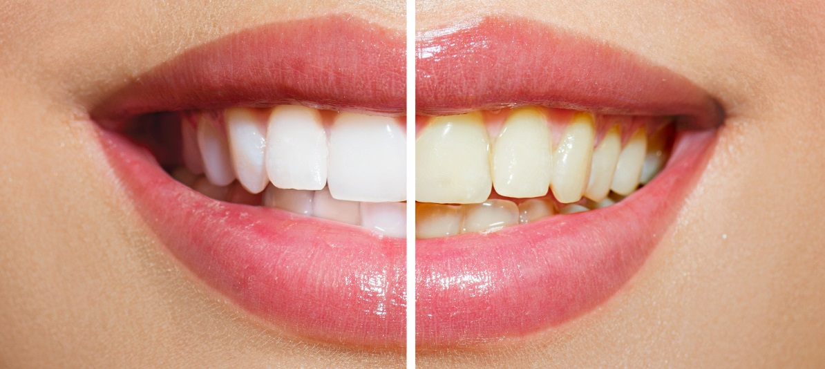 Top 8 Best Teeth Whitening Toothpastes Of 2020 Reviews
